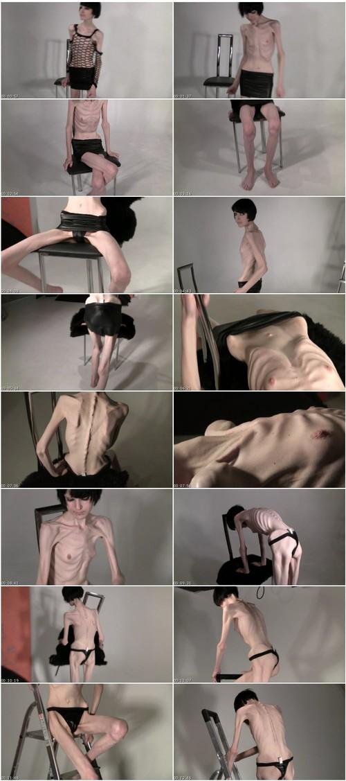 http://ist5-1.filesor.com/pimpandhost.com/9/6/8/3/96838/6/2/B/z/62Bz2/Anorexia156_thumb_m.jpg