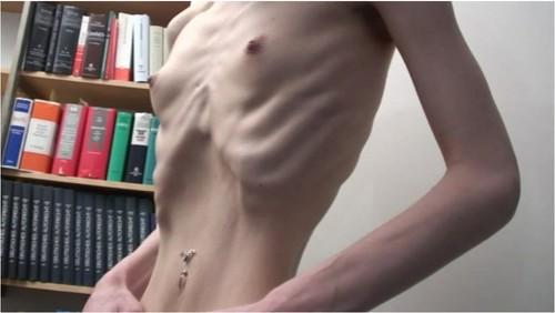 http://ist5-1.filesor.com/pimpandhost.com/9/6/8/3/96838/6/2/G/m/62GmW/Anorexia225_cover_m.jpg