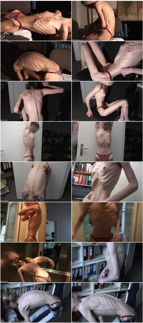 http://ist5-1.filesor.com/pimpandhost.com/9/6/8/3/96838/6/2/G/n/62Gnb/Anorexia225_thumb_m.jpg