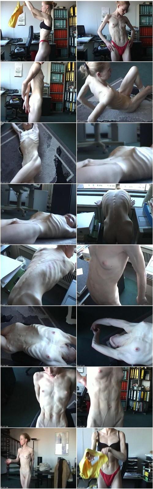 http://ist5-1.filesor.com/pimpandhost.com/9/6/8/3/96838/6/2/q/O/62qOa/Anorexia037_thumb_m.jpg
