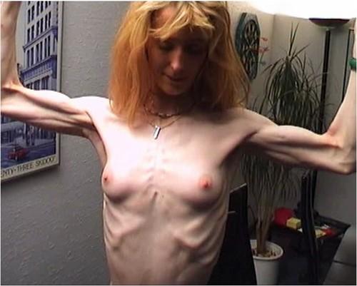 http://ist5-1.filesor.com/pimpandhost.com/9/6/8/3/96838/6/2/q/R/62qRj/Anorexia038_cover_m.jpg