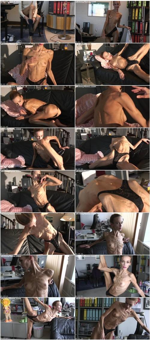 http://ist5-1.filesor.com/pimpandhost.com/9/6/8/3/96838/6/2/r/r/62rr7/Anorexia051_thumb_m.jpg