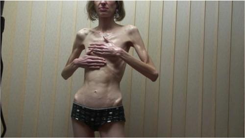 http://ist5-1.filesor.com/pimpandhost.com/9/6/8/3/96838/6/f/W/w/6fWwV/Anorexia-b015_cover_m.jpg