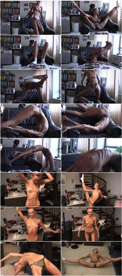 http://ist5-1.filesor.com/pimpandhost.com/9/6/8/3/96838/6/f/Y/F/6fYFV/Anorexia-b057_thumb_m.jpg