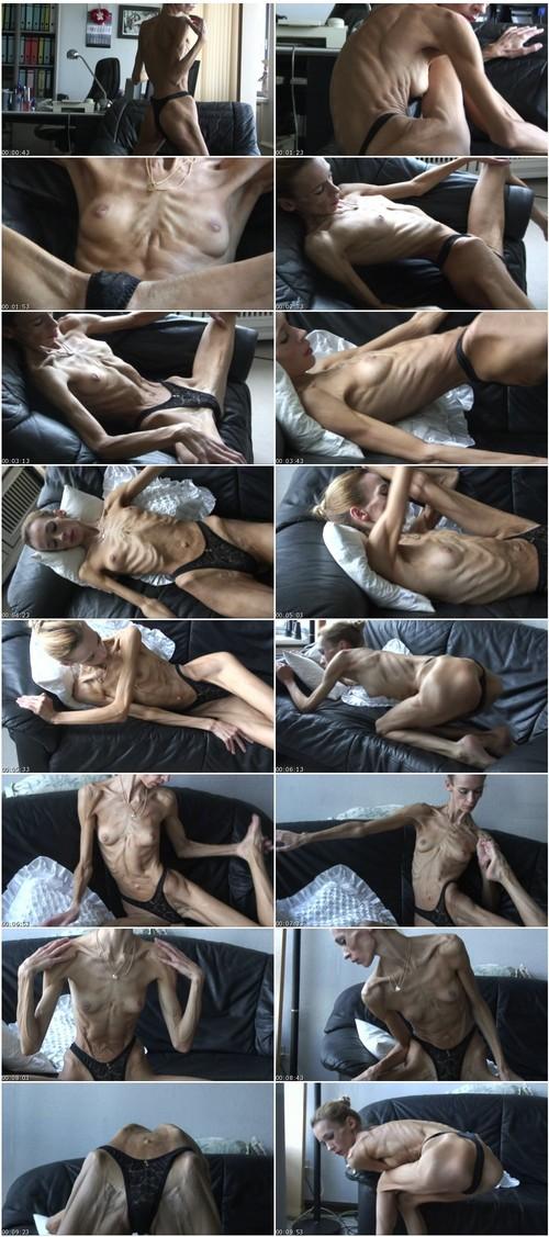 http://ist5-1.filesor.com/pimpandhost.com/9/6/8/3/96838/6/f/Z/E/6fZEC/Anorexia-b080_thumb_m.jpg
