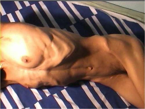http://ist5-1.filesor.com/pimpandhost.com/9/6/8/3/96838/6/f/Z/s/6fZs2/Anorexia-b071_cover_m.jpg