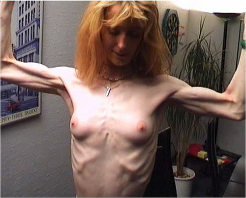 http://ist5-1.filesor.com/pimpandhost.com/9/6/8/3/96838/6/f/Z/x/6fZxp/Anorexia-b076_cover_m.jpg