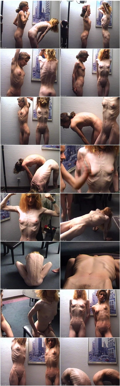 http://ist5-1.filesor.com/pimpandhost.com/9/6/8/3/96838/6/f/Z/x/6fZxs/Anorexia-b076_thumb_m.jpg