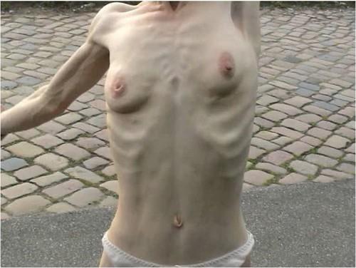 http://ist5-1.filesor.com/pimpandhost.com/9/6/8/3/96838/6/g/0/2/6g02d/Anorexia-b091_cover_m.jpg