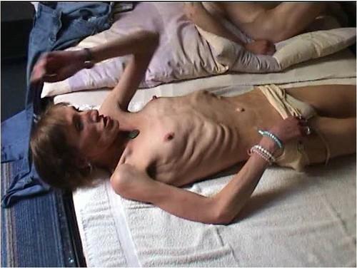http://ist5-1.filesor.com/pimpandhost.com/9/6/8/3/96838/6/g/0/Y/6g0YU/Anorexia-b106_cover_m.jpg