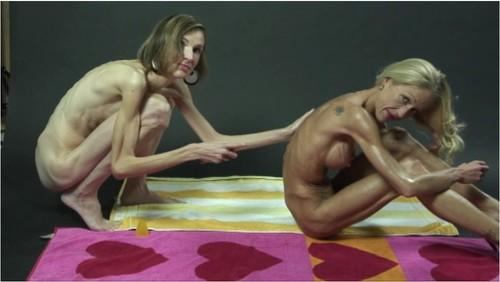 http://ist5-1.filesor.com/pimpandhost.com/9/6/8/3/96838/6/g/0/t/6g0tG/Anorexia-b100_cover_m.jpg