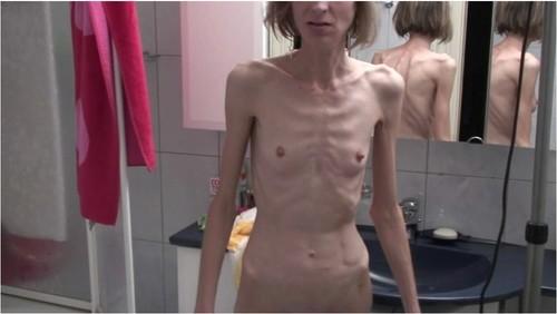 http://ist5-1.filesor.com/pimpandhost.com/9/6/8/3/96838/6/g/1/D/6g1Dx/Anorexia-b122_cover_m.jpg
