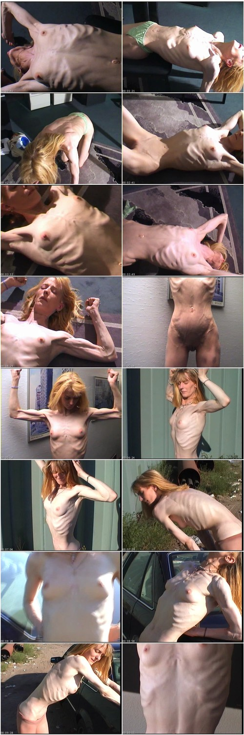 http://ist5-1.filesor.com/pimpandhost.com/9/6/8/3/96838/6/g/1/P/6g1PL/Anorexia-b132_thumb_m.jpg
