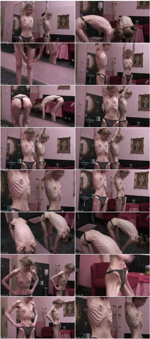 http://ist5-1.filesor.com/pimpandhost.com/9/6/8/3/96838/6/g/1/c/6g1cm/Anorexia-b110_thumb_m.jpg