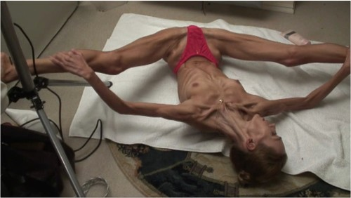 http://ist5-1.filesor.com/pimpandhost.com/9/6/8/3/96838/6/g/1/n/6g1nW/Anorexia-b117_cover_m.jpg