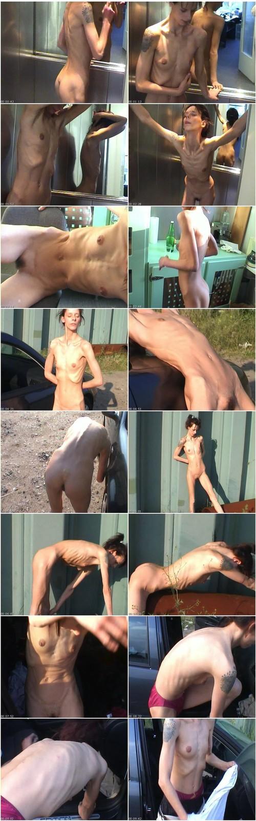 http://ist5-1.filesor.com/pimpandhost.com/9/6/8/3/96838/6/g/4/A/6g4A6/Anorexia-b175_thumb_m.jpg