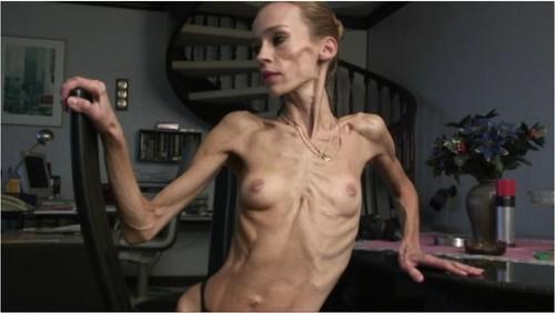 http://ist5-1.filesor.com/pimpandhost.com/9/6/8/3/96838/6/g/4/N/6g4NY/Anorexia-b178_cover_m.jpg