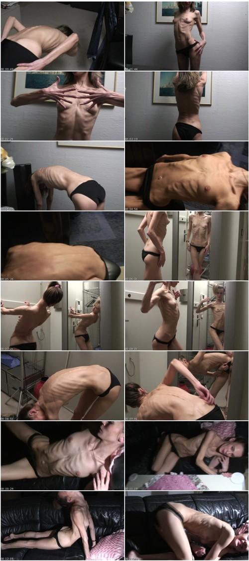 http://ist5-1.filesor.com/pimpandhost.com/9/6/8/3/96838/6/g/5/5/6g550/Anorexia-b182_thumb_m.jpg