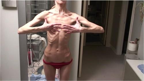 http://ist5-1.filesor.com/pimpandhost.com/9/6/8/3/96838/6/g/5/B/6g5BO/Anorexia-b188_cover_m.jpg
