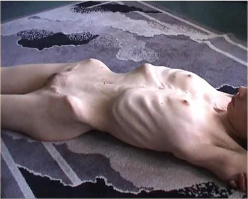 http://ist5-1.filesor.com/pimpandhost.com/9/6/8/3/96838/6/g/6/O/6g6OY/Anorexia-b208_cover_m.jpg