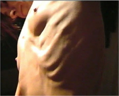 http://ist5-1.filesor.com/pimpandhost.com/9/6/8/3/96838/6/g/6/a/6g6al/Anorexia-b195_cover_m.jpg