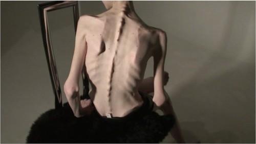 http://ist5-1.filesor.com/pimpandhost.com/9/6/8/3/96838/6/g/7/G/6g7GP/Anorexia-b236_cover_m.jpg