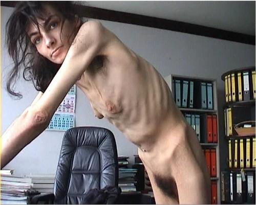 http://ist5-1.filesor.com/pimpandhost.com/9/6/8/3/96838/6/g/7/a/6g7a5/Anorexia-b220_cover_m.jpg