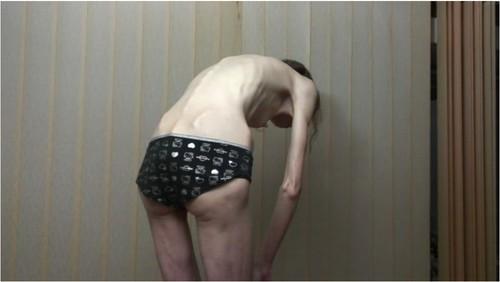 http://ist5-1.filesor.com/pimpandhost.com/9/6/8/3/96838/6/g/7/n/6g7nS/Anorexia-b229_cover_m.jpg