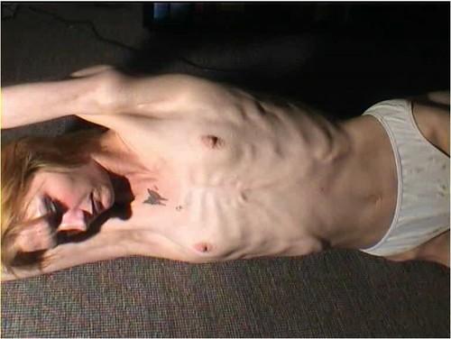 http://ist5-1.filesor.com/pimpandhost.com/9/6/8/3/96838/6/g/7/s/6g7sL/Anorexia-b231_cover_m.jpg
